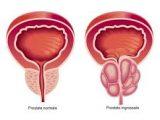 Prostatite, sintomi e cure efficaci per combatterla